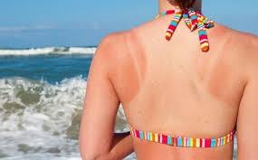 que alimentos comer para que la exposicion solar no perjudique mi piel y mi organismo. La dietista de san sebastian vanessa blazque te ayuda a cuidar tu cuerpo este verano y sin riesgos